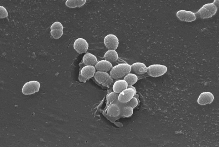 enterococcus faecalis sensitivity towards ampicillin penicillin Cidal cooperation was observed for ampicillin combined with 2 mg/l of ertapenem   ted strains of enterococcus faecalis with high-level aminoglycoside resistance   amoxicillin and cefotaxime in 48 out of 50 e faecalis strains.