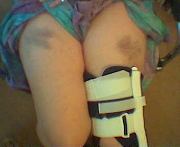 Ladder fall bruise.jpg