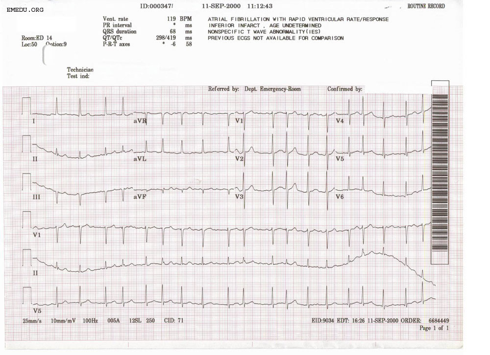 Dr. Smith's ECG Blog: 5 hours of chest pain. How acute is ... |Ekg Examples