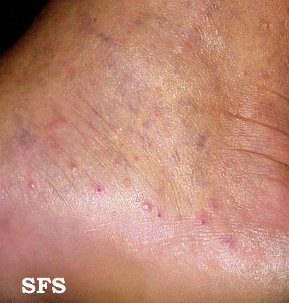 Palmoplantar pustulosis: Treatment - UpToDate