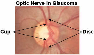 Glaucoma,optic nerve.jpg
