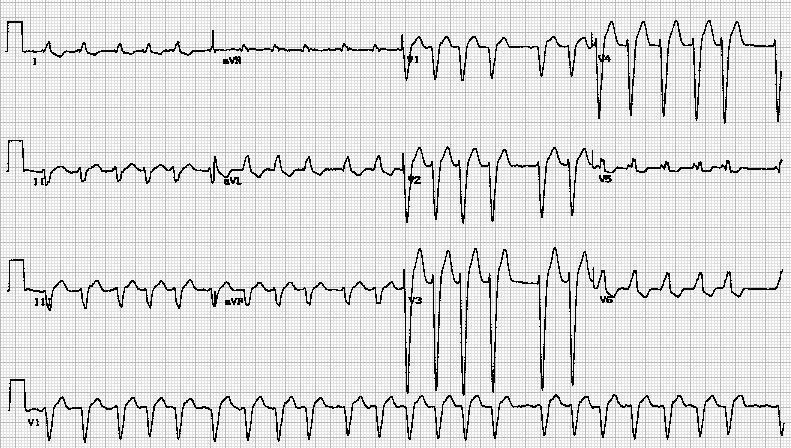Atrial Fibrillation with old LBBB.jpg