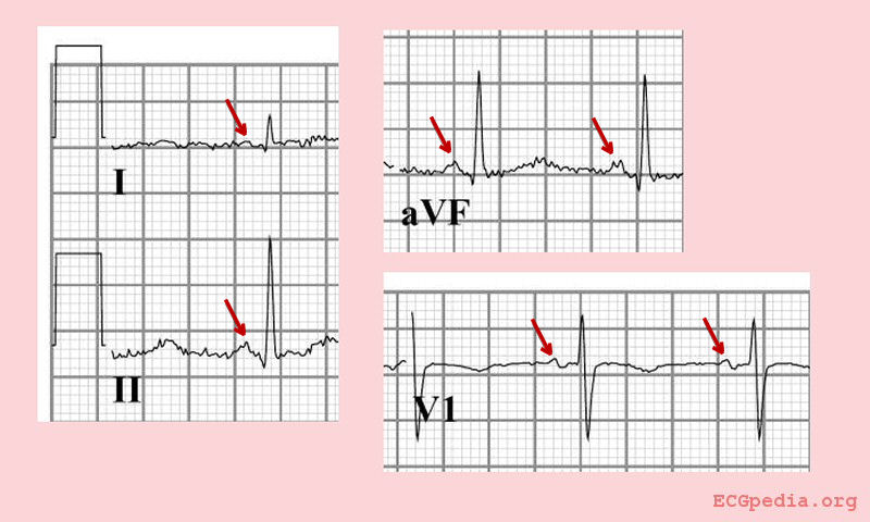 Normal sinus rhythm with a positive p wave in leads I, II and aVF and a biphasic P wave in V1.