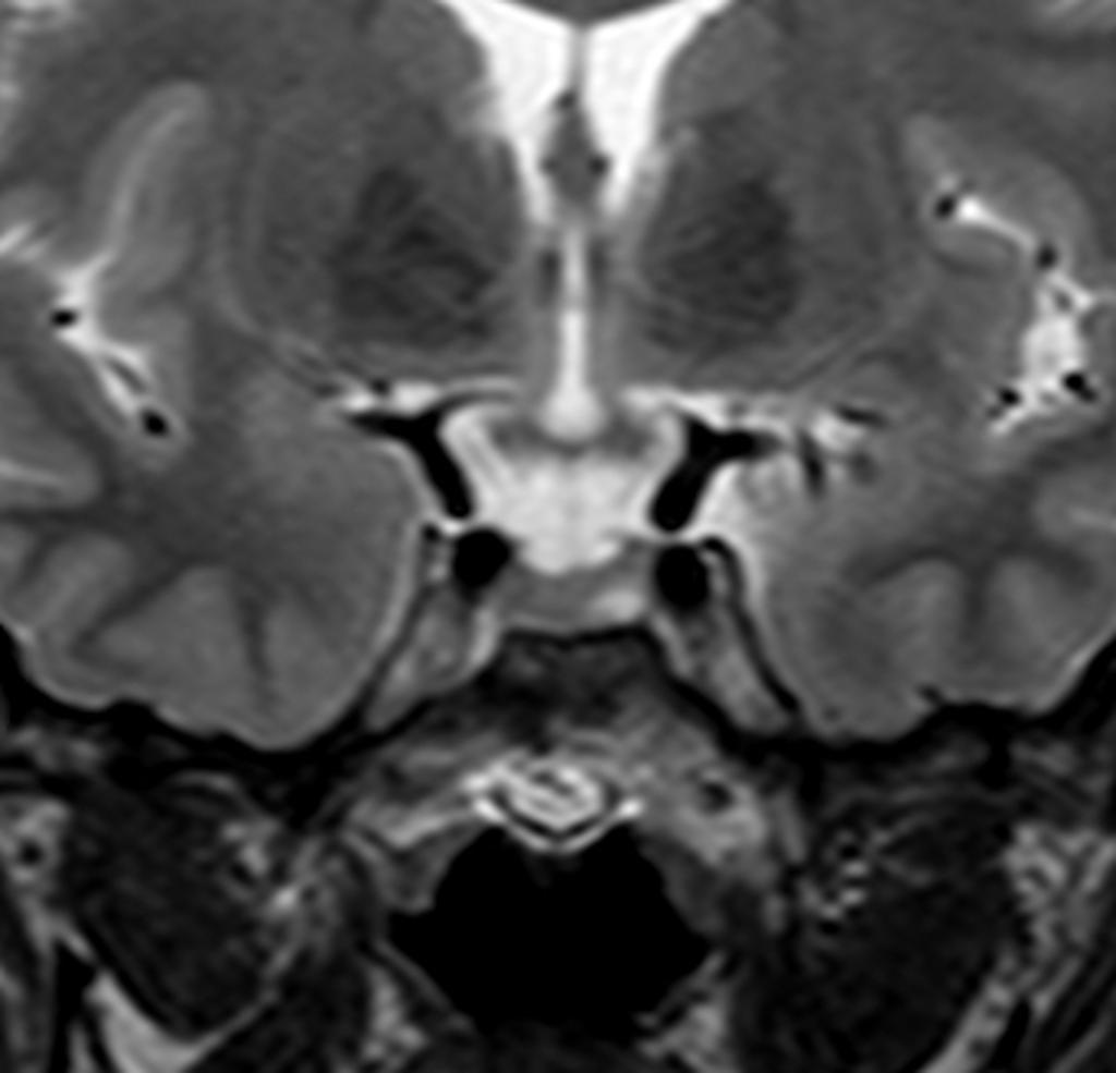 pituitary microadenoma mri dynamic