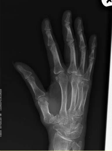 Rheumatoid Arthritis X Ray