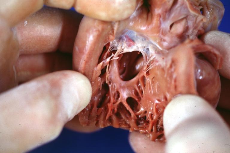 Persistent Truncus Arteriosus Pathophysiology  U0026 Etiology