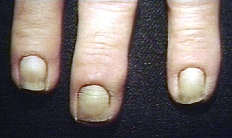 Secondary aterosclerotic changes.Nail.jpg