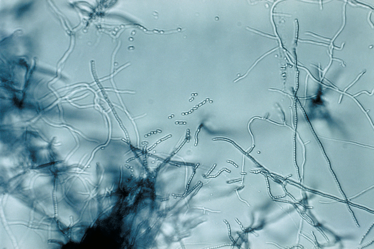 Slide culture of a Streptomyces sp.