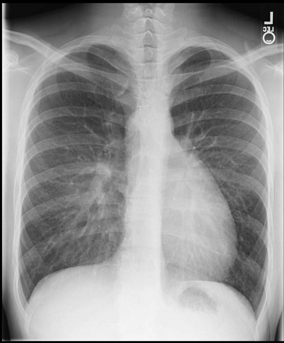 transposition of the great vessels chest x ray wikidoc