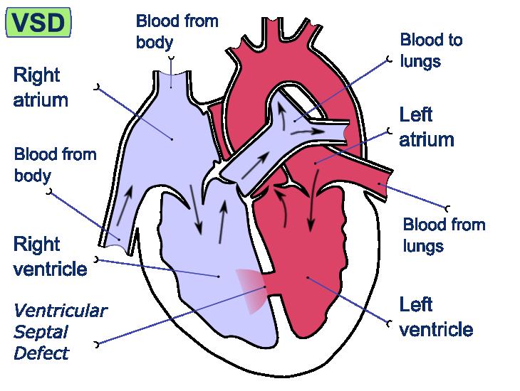 Ventricular Septum Diagram Auto Electrical Wiring Diagram