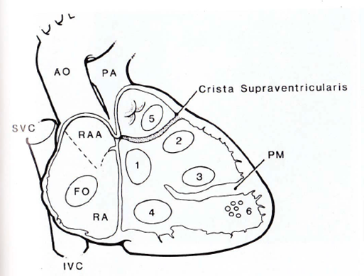 Morphology of VSD (needs editing).png