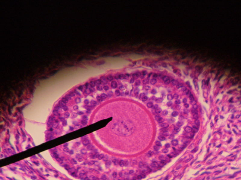 Primary follicle-4.JPG