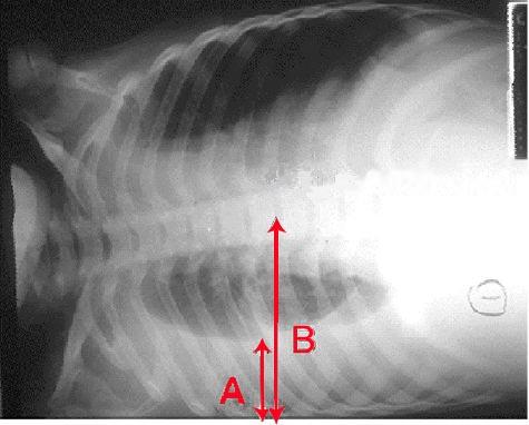 effusion chest x ray of a pleural effusion the arrow a shows fluid ...