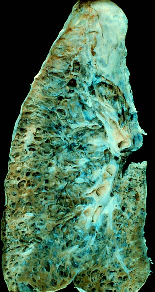 End-stage interstitial lung disease (honeycomb lung).jpg
