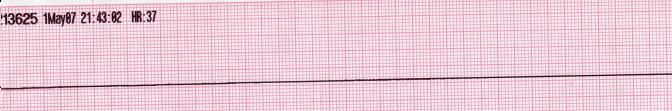 Lead II rhythm generated asystole.JPG