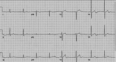 Hyperacute T waves in V1.jpg