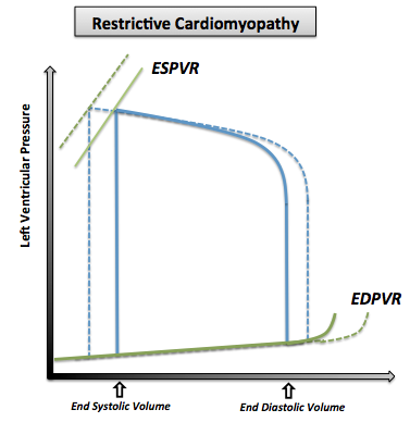 The pressure volume curve in restrictive cardiomyopathy. Note that the normal pressure volume diagram is in dotted line.