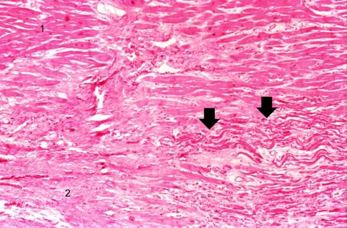 St Elevation Myocardial Infarction Case Study Three