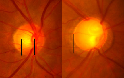 Glaucoma physical exam...