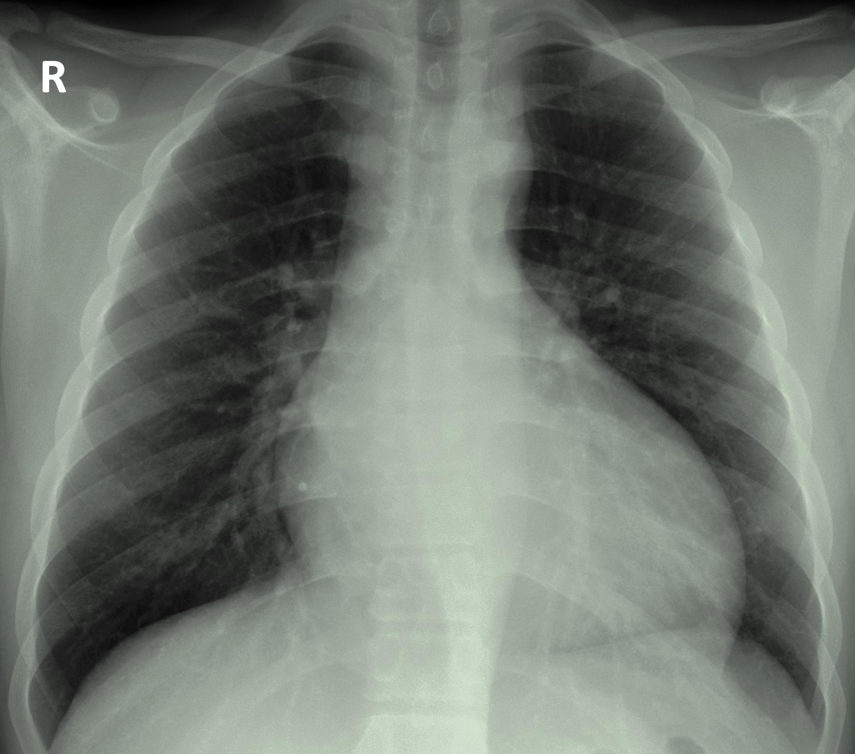 Aortic regurgitation x-ray.jpg