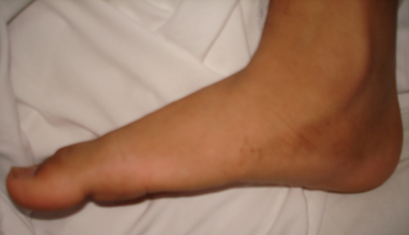 flat feet symptoms