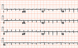 Tamponade-with-alternans.jpg