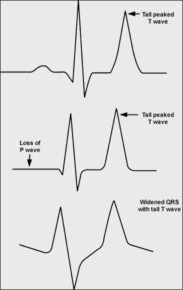 electrical sine wave