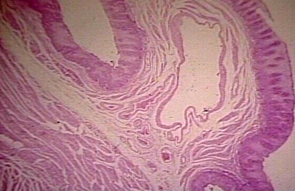 treatment of colon cancer essay