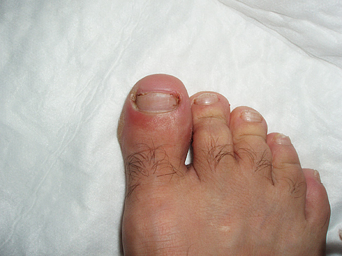 how to fix yellowing toe nail