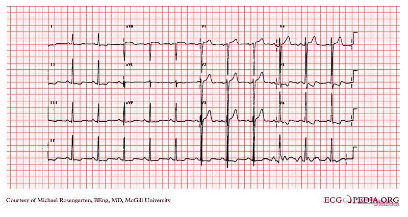 left ventricular hypertrophy ekg examples