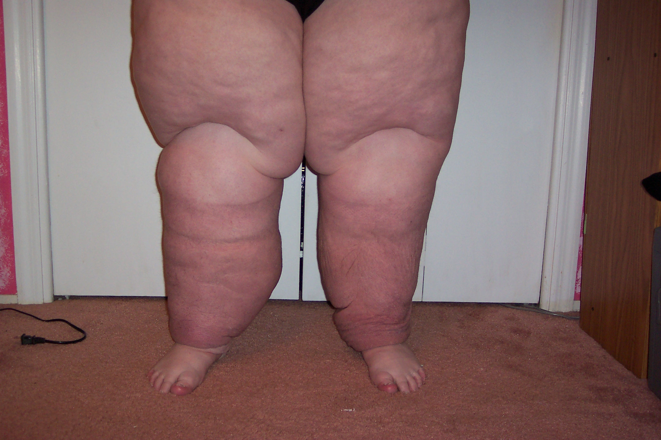 how to become a certified lymphedema therapist