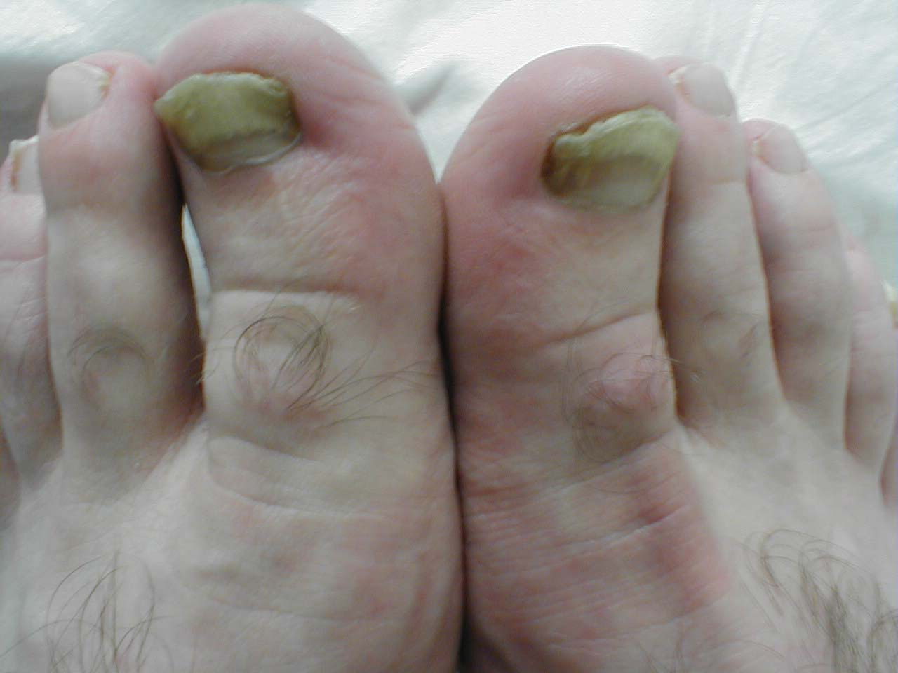 Fungal Toe Infection Natural Treatment