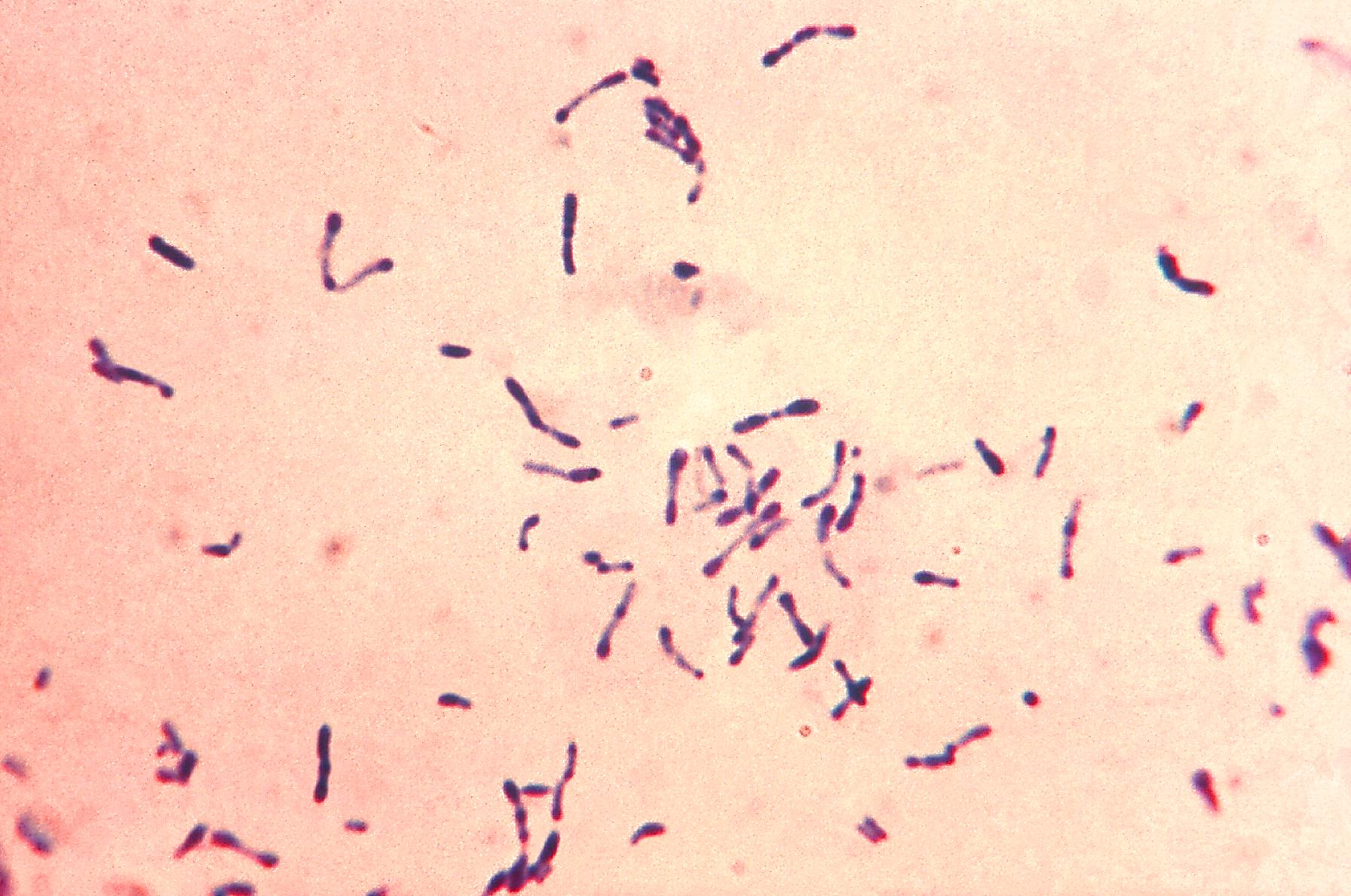Gram stained Corynebacterium diphtheriae culture