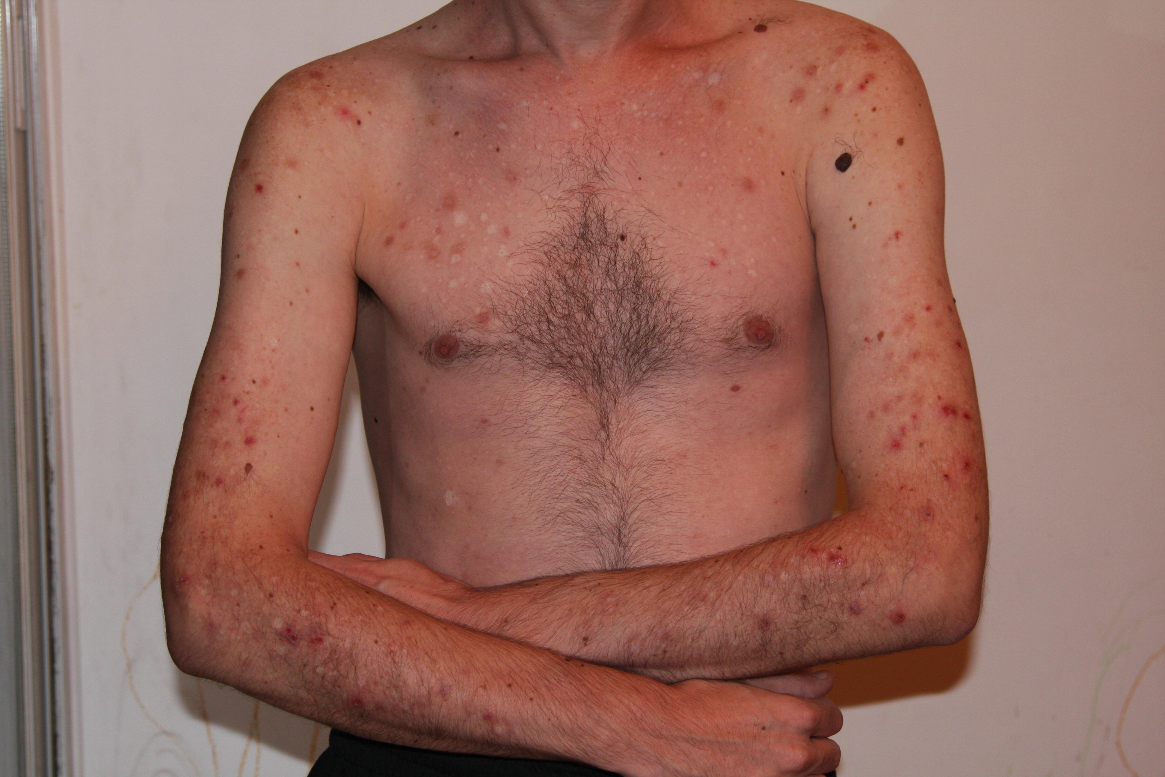 Meth Effects On Skin