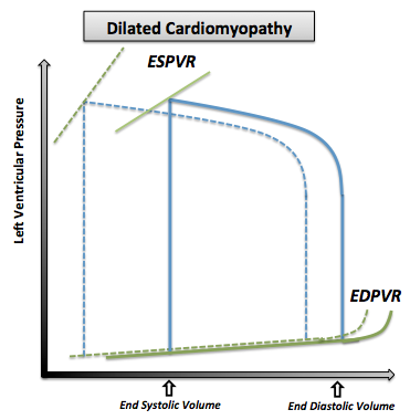 The pressure volume loop in dilated cardiomyopathy. Note that the normal pressure volume diagram is in dotted line