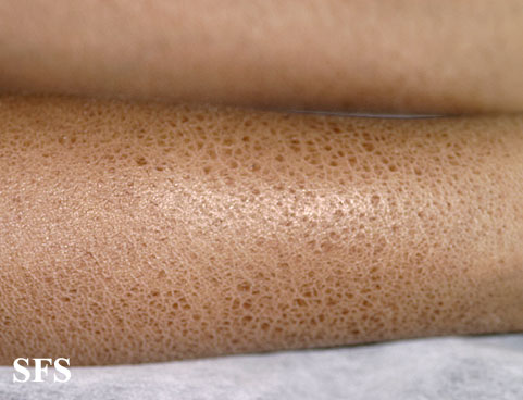 icthyosis vulgaris Group of cutaneous disorders of keratinization representing more than 95% of ichthyosis cases can be a genetic disorder that is generally present soon after.