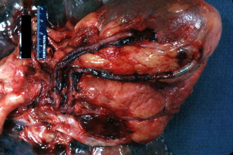 Saphenous vein coronary bypass graft  Gross  natural color  external    Thrombosed Vein