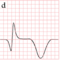 STEMI evolution d.png