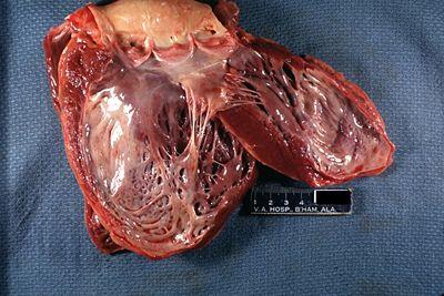 Acute myocardial infarction thesis