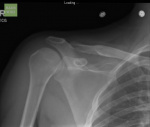 Anterior-shoulder-dislocation-006.jpg
