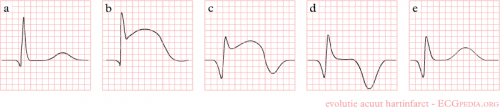 STEMI evolution.png