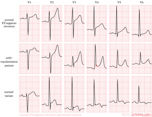 Examples of Early Repolarization and Normal Variant of ST Elevation