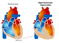 Right Ventricular hypertrophy svg.png