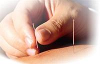 Alissa M Stockton, Acupuncturist
