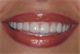 Mitchell Pohl, DDS
