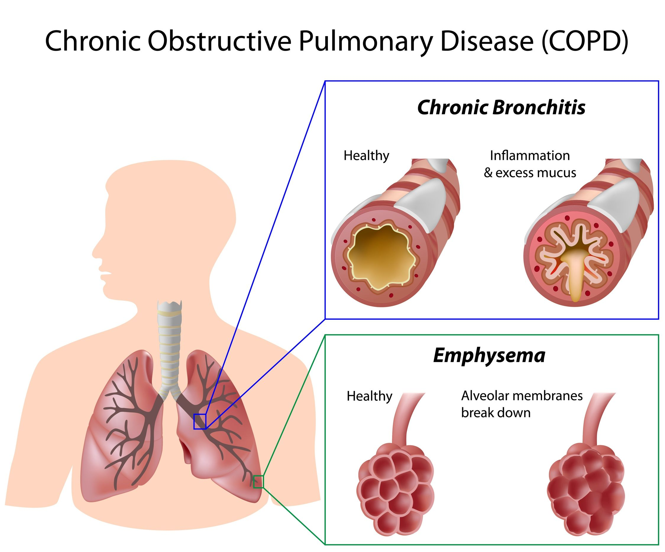 copd stem cell, copd treatment, copd stem cell treatment, stem cell therapy, copd, stem cell treatment,