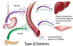 diabetes stem cell treatment, stem cell therapy, diabetes treatment, stem cell treatment diabetes, diabetic stem cell therapy