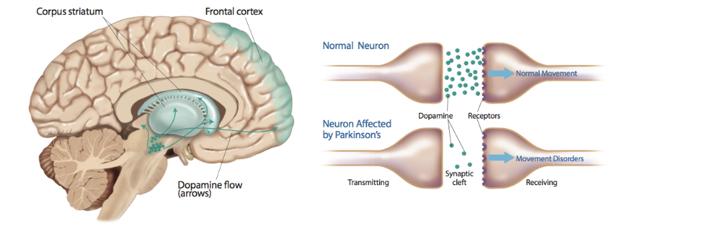 parkinson's disease stem cell therapy
