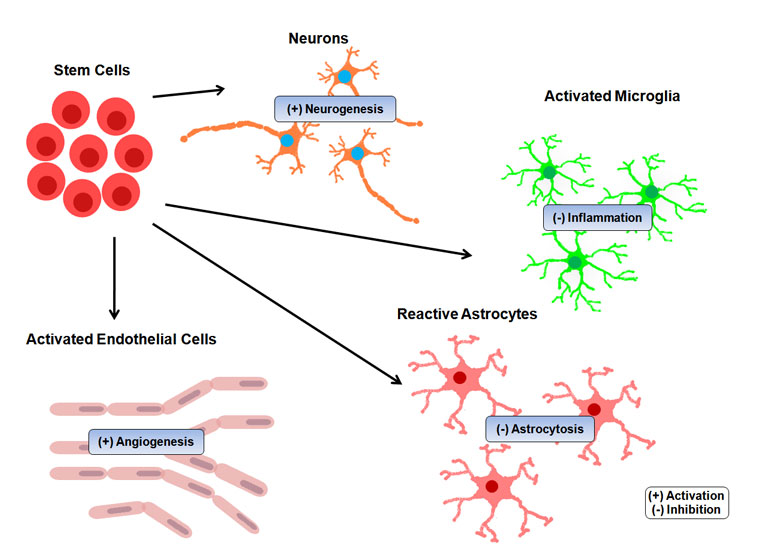 stroke stem cell treatment