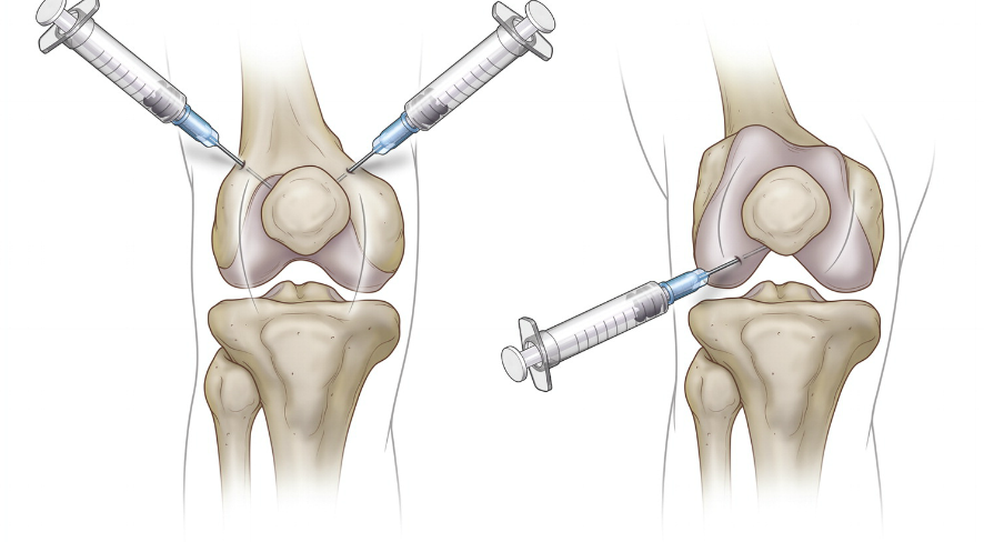 stem cell injections knees